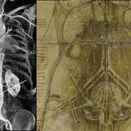 /images/0/5/05-autopsia-virtuale-a.png