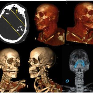 /images/2/5/25-autopsia-virtuale-b.png